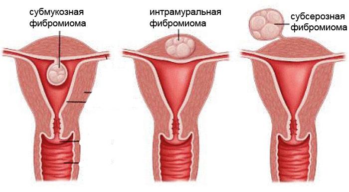 фибромиомы фото