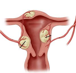 диагноз фибромиома в матке опасен