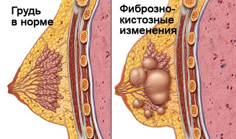фиброзные изменения и норма