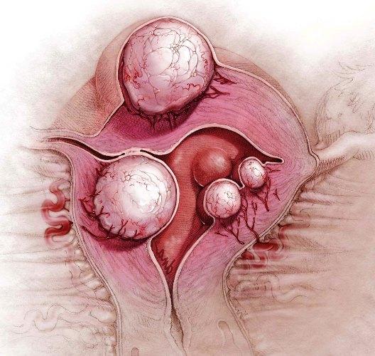 женщина у врача гинеколога по поводу миомы климакса
