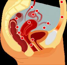 эндометриоз боли в животе и яичниках опасен