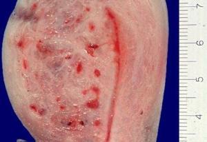 Матка пораженная аденомиозом в разрезе