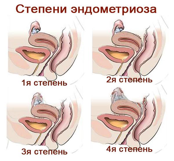 что такое эндометриоз степени