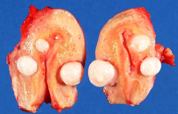 Интрамуральные лейомиомы, удаленные при операции