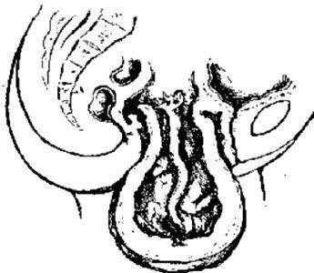 Рождающийся фиброматозный узел