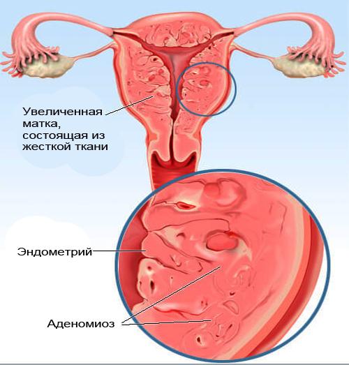 аденомиоз тела матки 2 степени