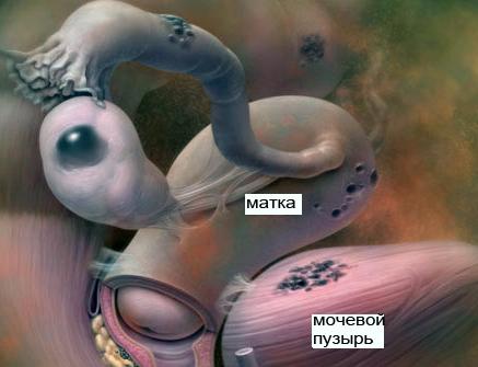 эндометриоз фото внутренних органов