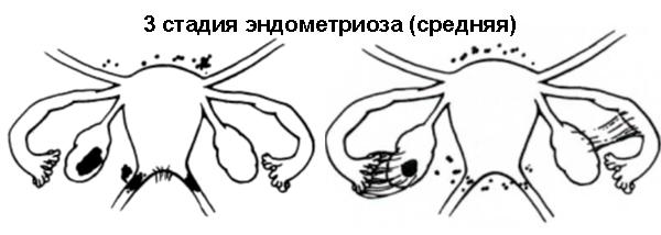 эндометриоз матки 3 степень