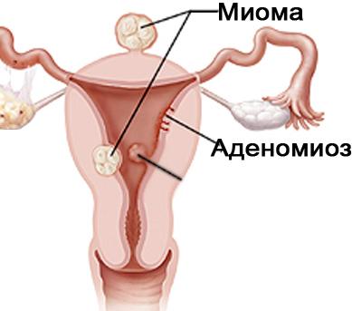 миома матки с признаками аденомиоза