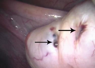 Как выглядят очаги эндометриоза