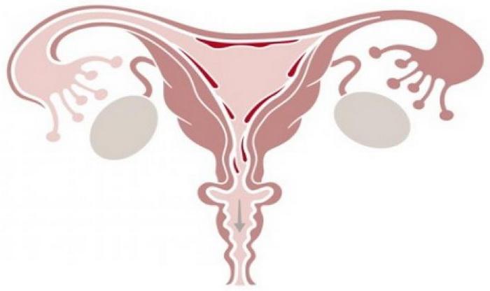 Скудные месячные при эндометриозе