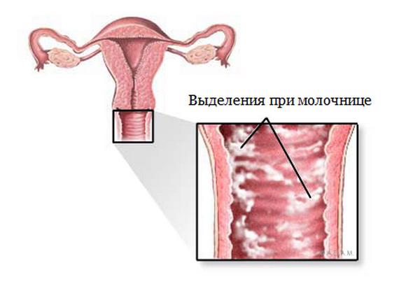 симптомы молочницы у девушек