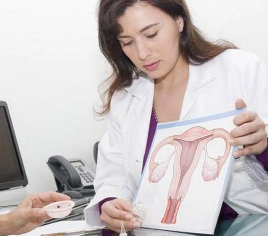 эндометриоз после прижигания эрозии