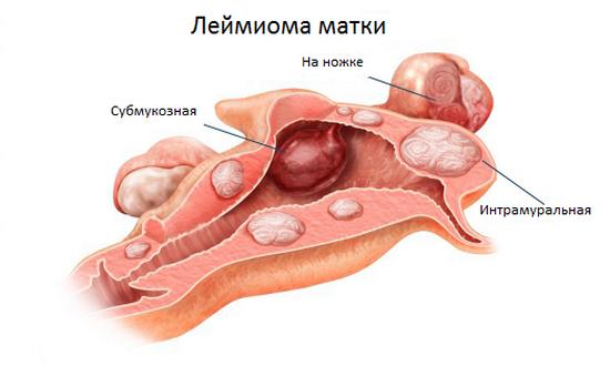 интрамуральная лейомиома матки показания к операции