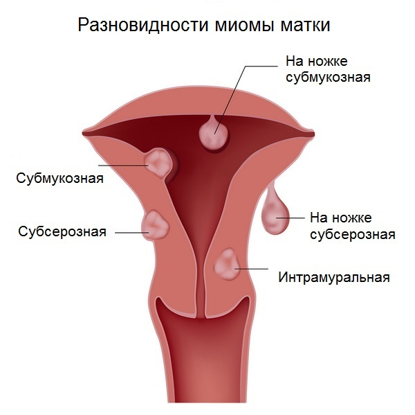 болит ли миома матки