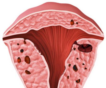 аденомиоз матки симптомы и лечение