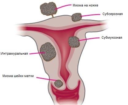 миома шейки матки симптомы и лечение