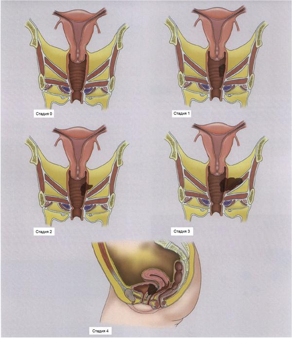 наружный эндометриоз симптом