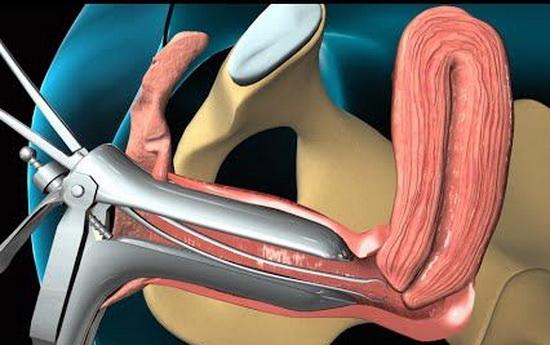 процедура биопсии при миоме матки