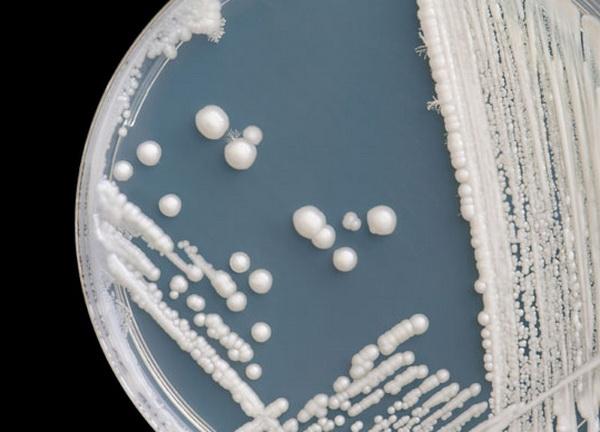свечи восстанавливающие микрофлору после молочницы