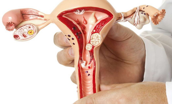 миома и беременность после 35 лет осложнения
