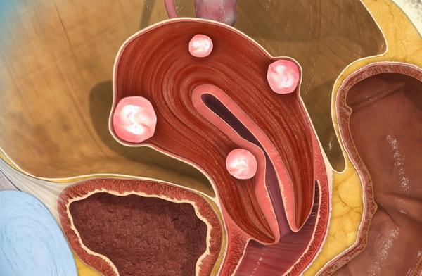 миома матки гиперплазия эндометрия в менопаузе