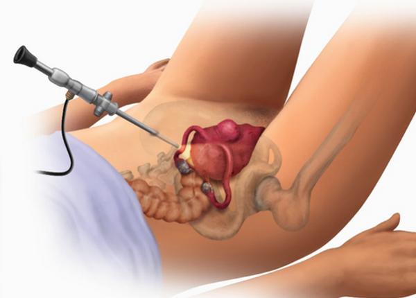 операция множественные миомы матки малых размеров