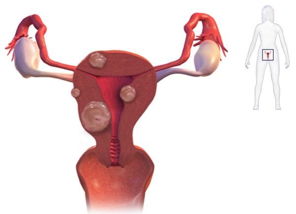 множественная миома матки лечение