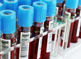 какие анализы сдают при эндометриозе