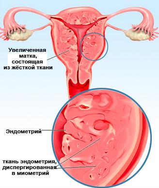 Беременность симптомы и эндометриоз