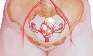 Миома матки - размеры для операции: когда делают