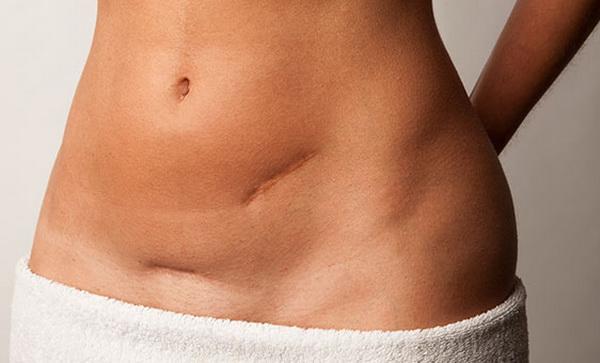 Удаление миомы матки полостная операция последствия