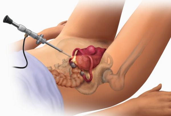 Удаление миомы матки (операция) последствия отзывы цена